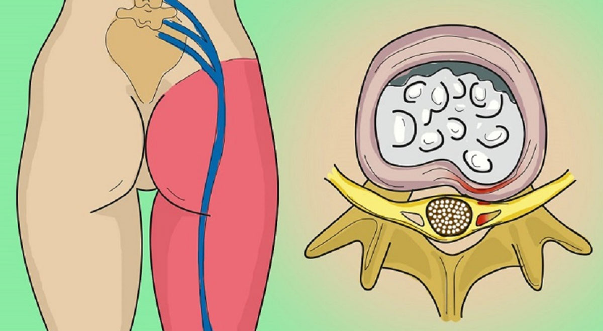 Diferentes Tipos de daño del Nervio Ciático